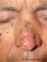 Actinic Keratosis - American Osteopathic College of