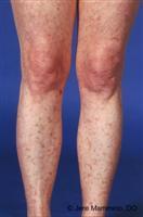 Disseminated Superficial Actinic Porokeratosis American