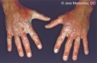 Hand Rashes American Osteopathic College Of Dermatology