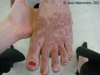 Henoch-Schonlein Purpura - American Osteopathic College of ...