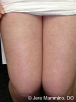 Keratosis Pilaris - American Osteopathic College of Dermatology (AOCD)