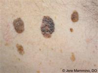Seborrheic Keratoses - American Osteopathic College of Dermatology