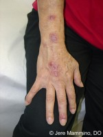 research paper sporotrichosis Sporotrichosis is often manifested as a chronic granulomatous infection and the monocytes/macrophages play a central role in the host defense system  florists, forestry workers, paper.