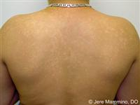 Tinea Versicolor - American Osteopathic College of Dermatology (AOCD)