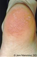 Warts - American Osteopathic College of Dermatology (AOCD)