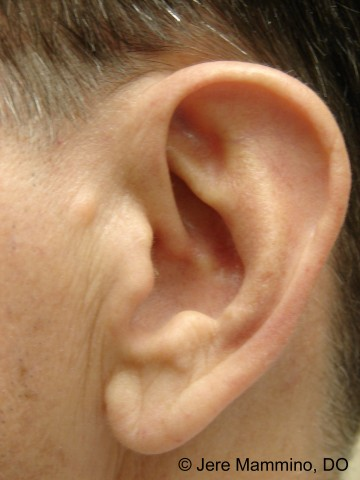Accessory Tragus - American Osteopathic College of