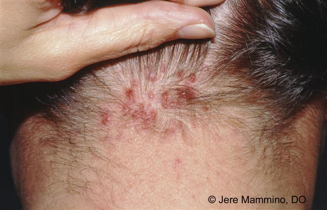 keloid steroid injection side effects