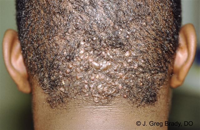 intralesional steroid injections for alopecia