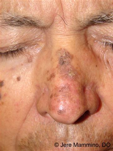 Little hottie liquid nitrogen on precancerous facial skin she could