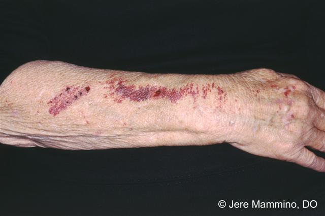 Red, Blotchy Skin on the Arms | LIVESTRONG.COM