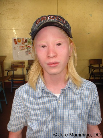 Albinism American Osteopathic College Of Dermatology Aocd