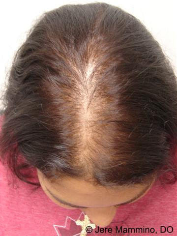 Female Pattern Hair Loss American Osteopathic College Of Dermatology Aocd