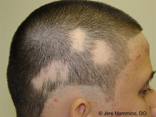 Alopecia areata (AA) is the patchy loss of hair ...