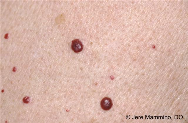 angiomas - american osteopathic college of dermatology (aocd), Skeleton