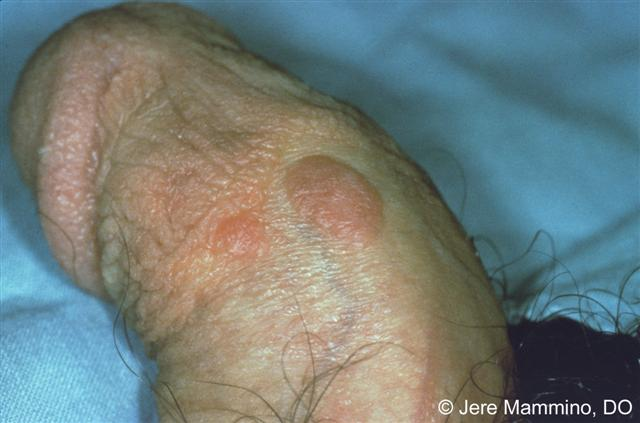 Bowenoid Papulosis American Osteopathic College Of Dermatology Aocd