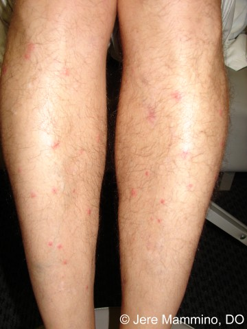 Chiggers - American Osteopathic College of Dermatology (AOCD)