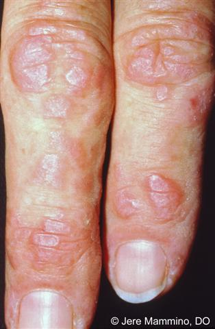 What is dermatomyositis?