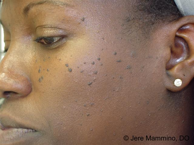 dermatosis papillomatosis nigra