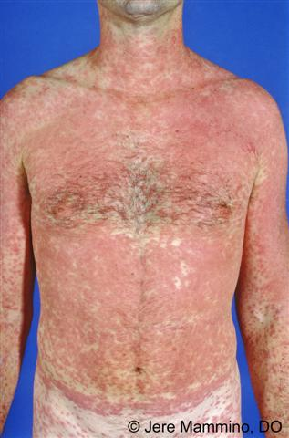 erythema multiforme major #11
