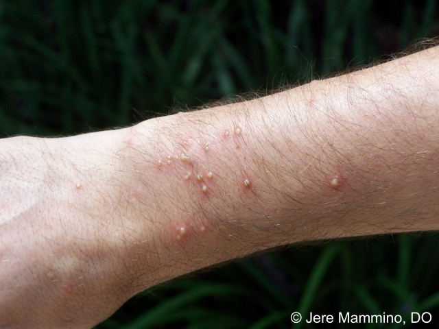 What Do Fire Ant Bites Look Like? Picture of Fire Ant Stings