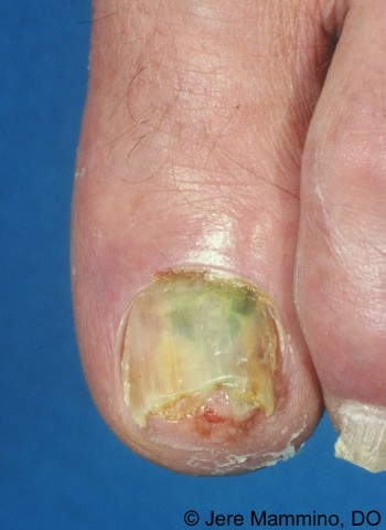 Green Nail Syndrome