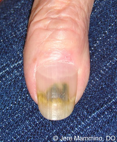 Green Nail Syndrome American Osteopathic College Of Dermatology Aocd