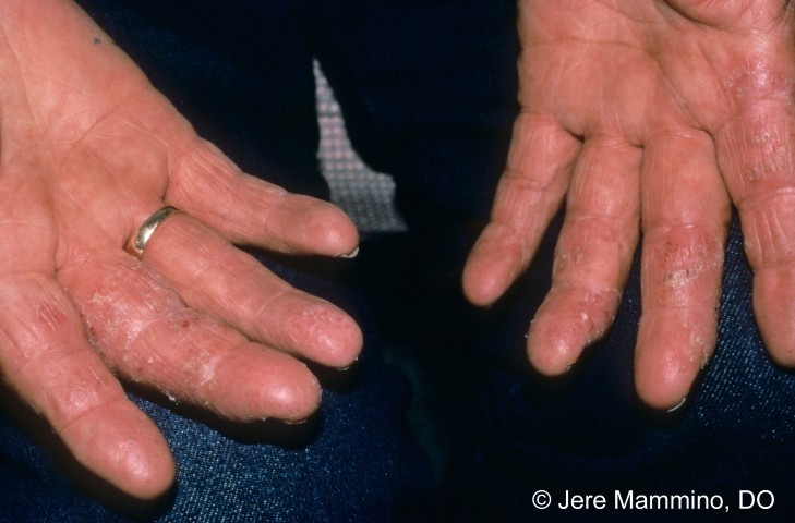 Hand Rashes - American Osteopathic College of Dermatology ...