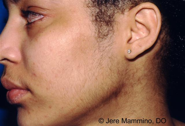 Hirsutism Overview - Mayo Clinic