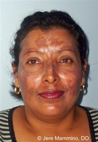 Hyperpigmentation American Osteopathic College Of Dermatology Aocd