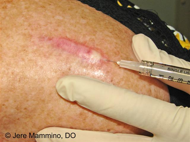 keloid steroid injection dose