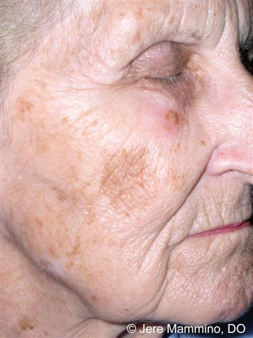 Lentigines American Osteopathic College Of Dermatology