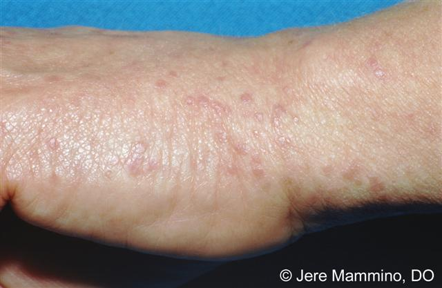 Lichen Planus American Osteopathic College Of Dermatology Aocd