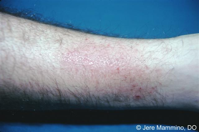 Lichen Simplex Chronicus - American Osteopathic College of ...