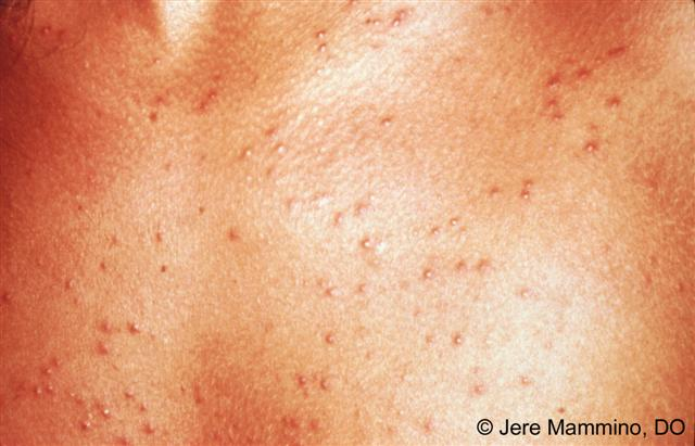 7 Types of Skin Rash You Shouldn't Ignore - All Rash