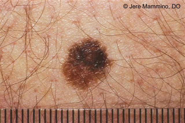 Moles - American Osteopathic College of Dermatology (AOCD)