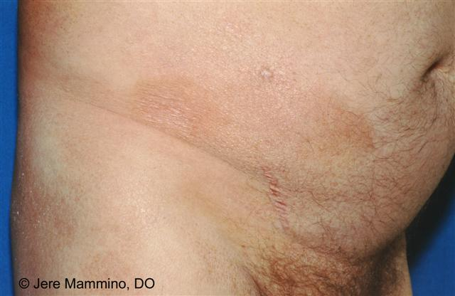 Mycosis Fungoides - American Osteopathic College of