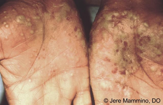 Palmoplantar Pustulosis - American Osteopathic College of