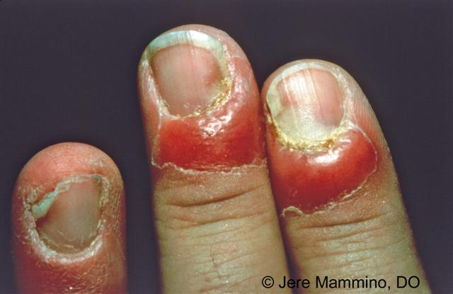 Paronychia Nail Infection - American Osteopathic College of