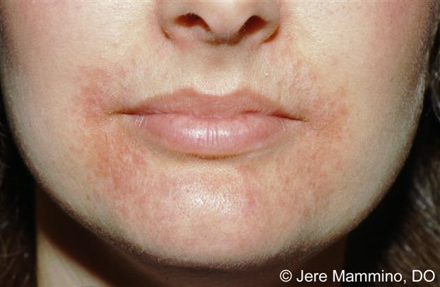 Mild Perioral Dermatitis Lips Perioral dermatitis is a