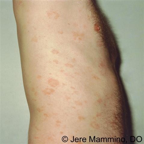 Shingles - Symptoms - WebMD