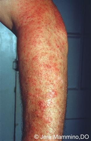 Polymorphous Light Eruption - American Osteopathic College