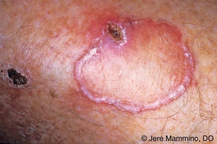 Porokeratosis of MibelliPorokeratosis