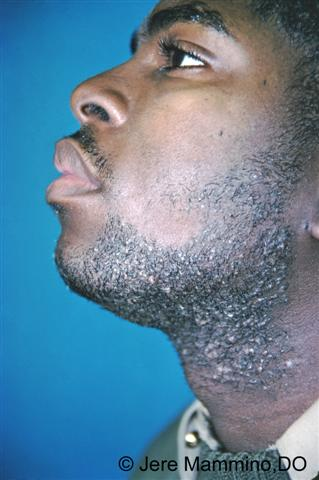 Pseudofolliculitis Barbae American Osteopathic College Of Dermatology Aocd