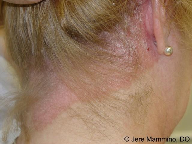 psoriatic lesions