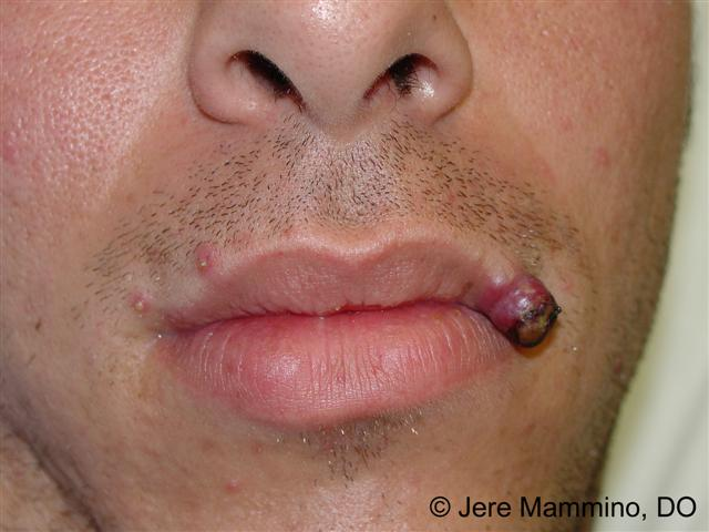 how to get rid of a granuloma