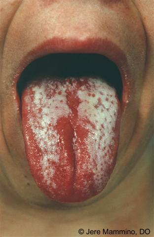 scarlet fever - american osteopathic college of dermatology (aocd), Cephalic Vein