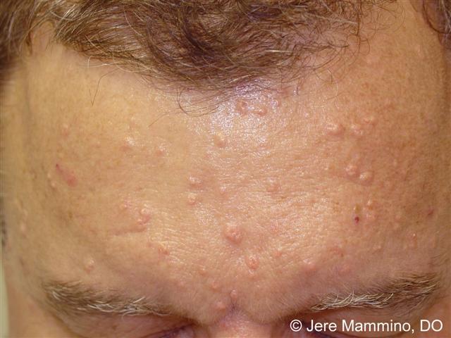 Facial oil glands