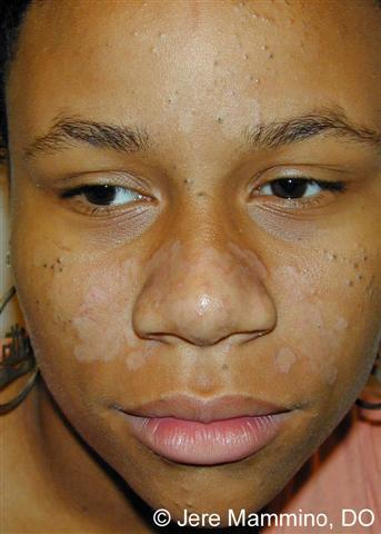 eczema symptoms in adults