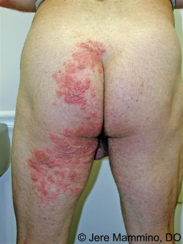 Outbreaks on the buttocks - thehelpernewsletter.org