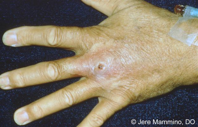 Spider Bite On Finger Swelling